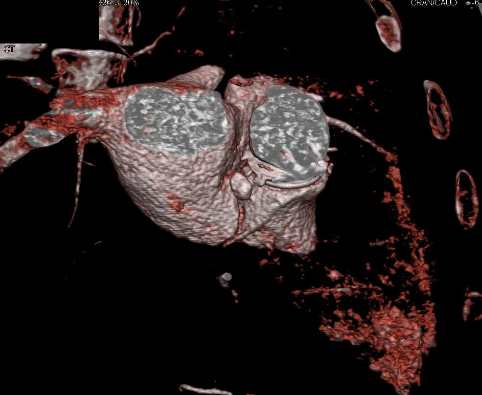 Pseudoaneurysm off the Left Ventricle - CTisus CT Scan