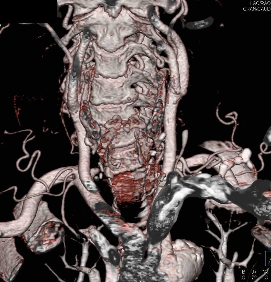 Residual Thyroid Tissue in Posterior Mediastinum - Chest Case ...