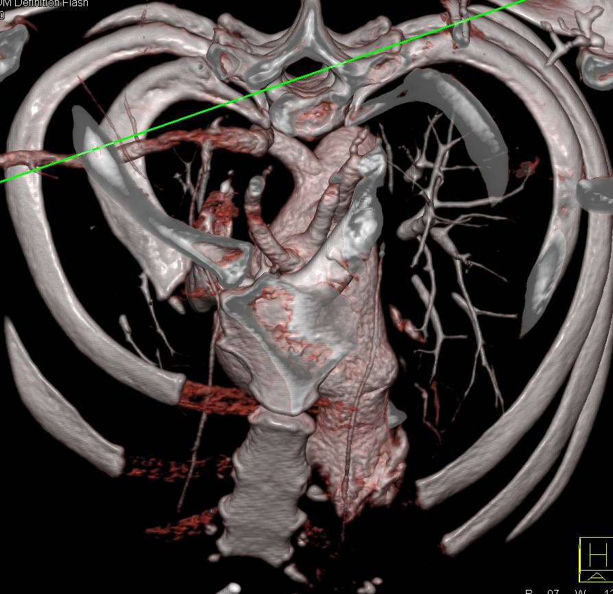 Aberrant Right Subclavian Artery