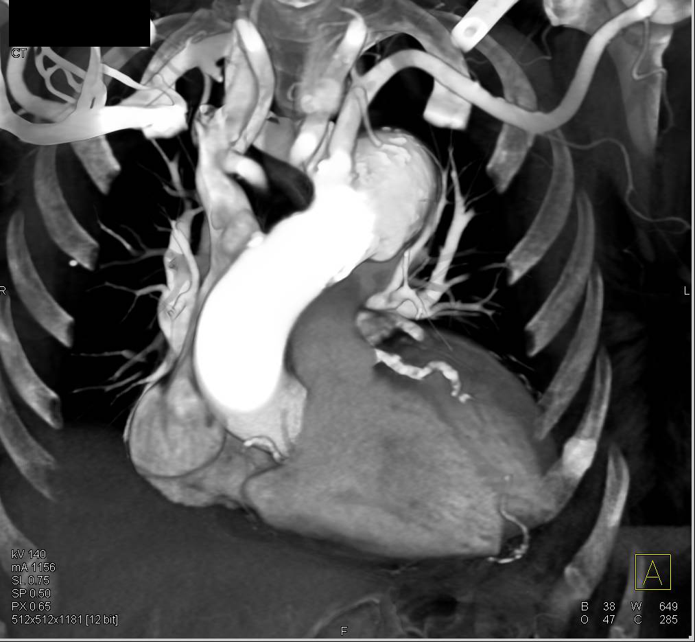 Aberrant Right Subclavian Artery with Dilatation at Origin