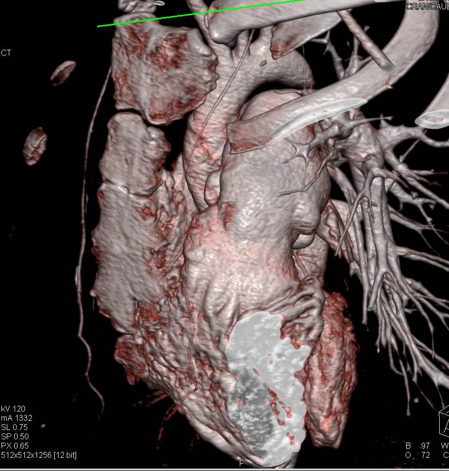 Enlarged Main Pulmonary Artery - CTisus CT Scanning