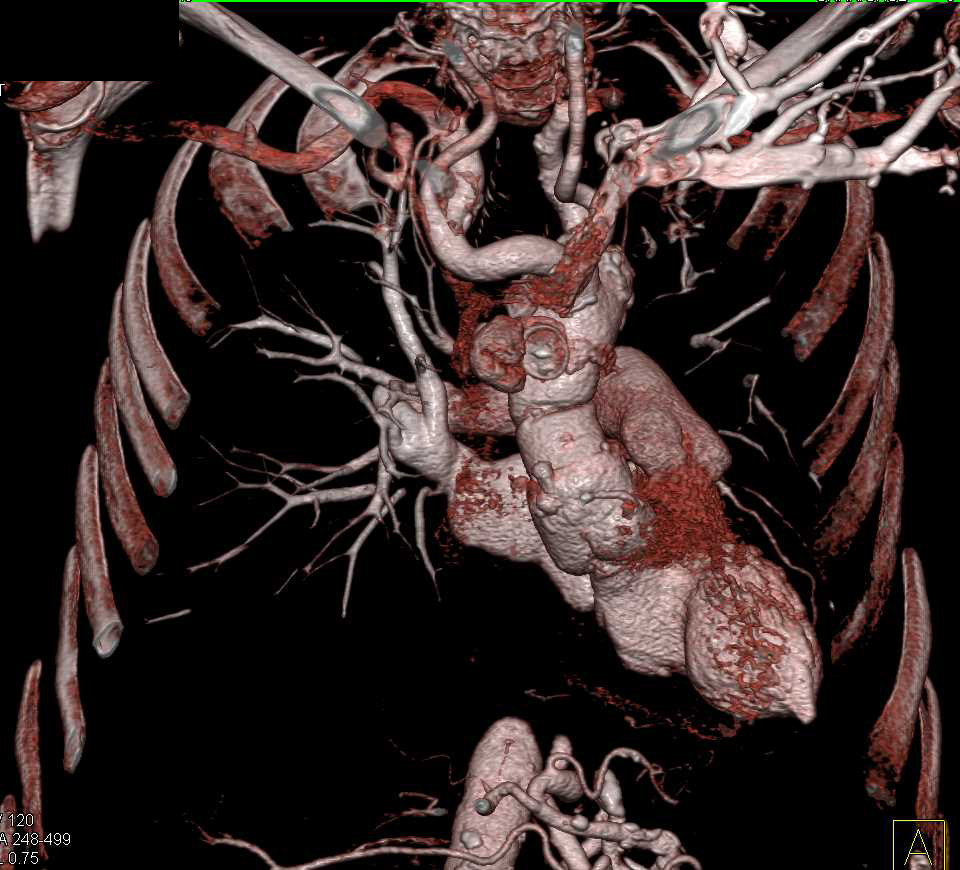 Pseudoaneurysm Ascending Aorta with Amplatz Occluder Devise