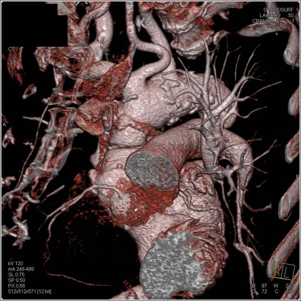 Pseudoaneurysm Ascending Aorta with Amplatzer Occluder Device - CTisus CT Scanning