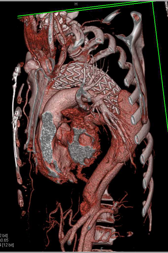Endovascular Stent Repair Thoracic Aorta - CTisus CT Scanning