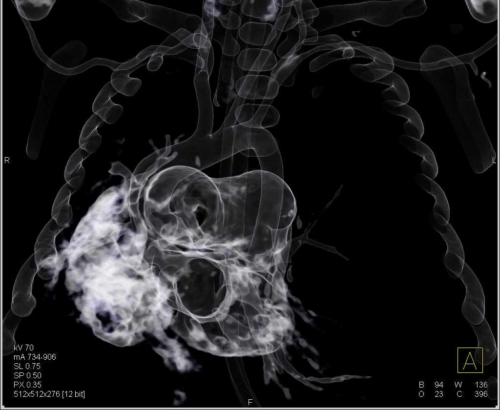 Hypoplastic Right Lung - CTisus CT Scanning