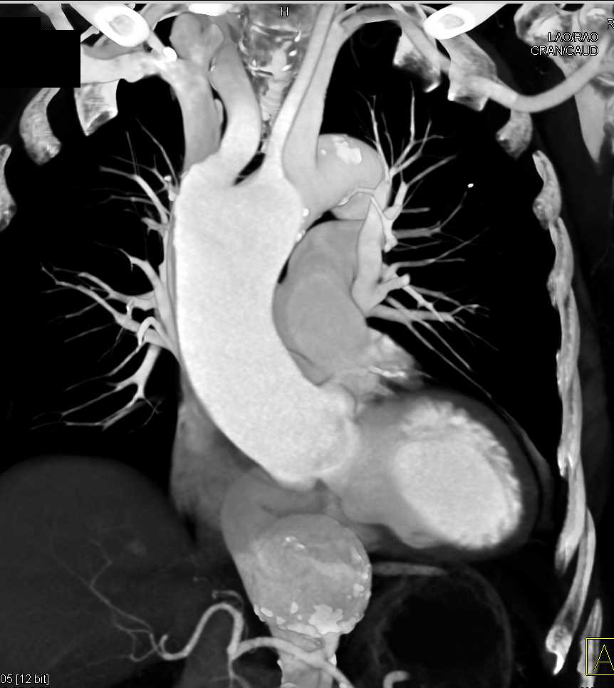 Plaque in Aortic Arch and Incidental AAA - CTisus CT Scanning