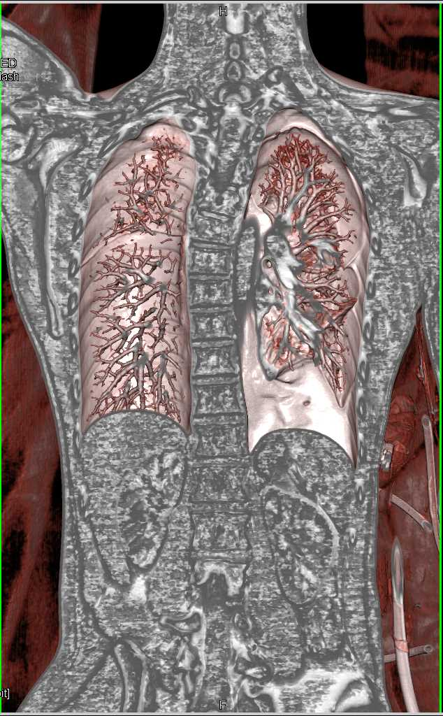 Stab Wound with Pneumothorax - CTisus CT Scanning