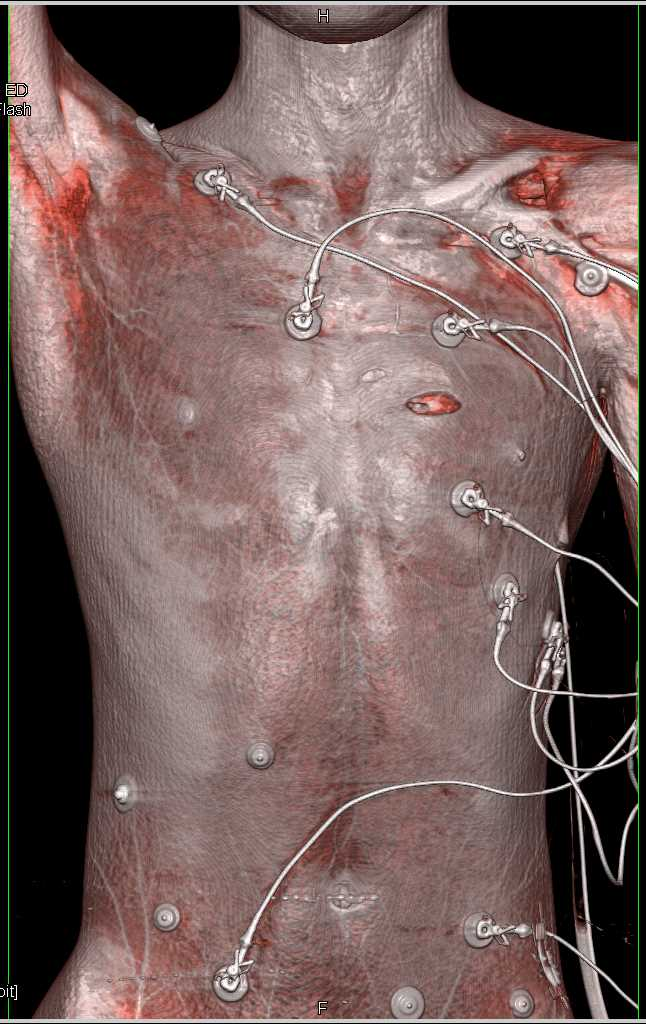 Stab Wound With Pneumothorax - Chest Case Studies