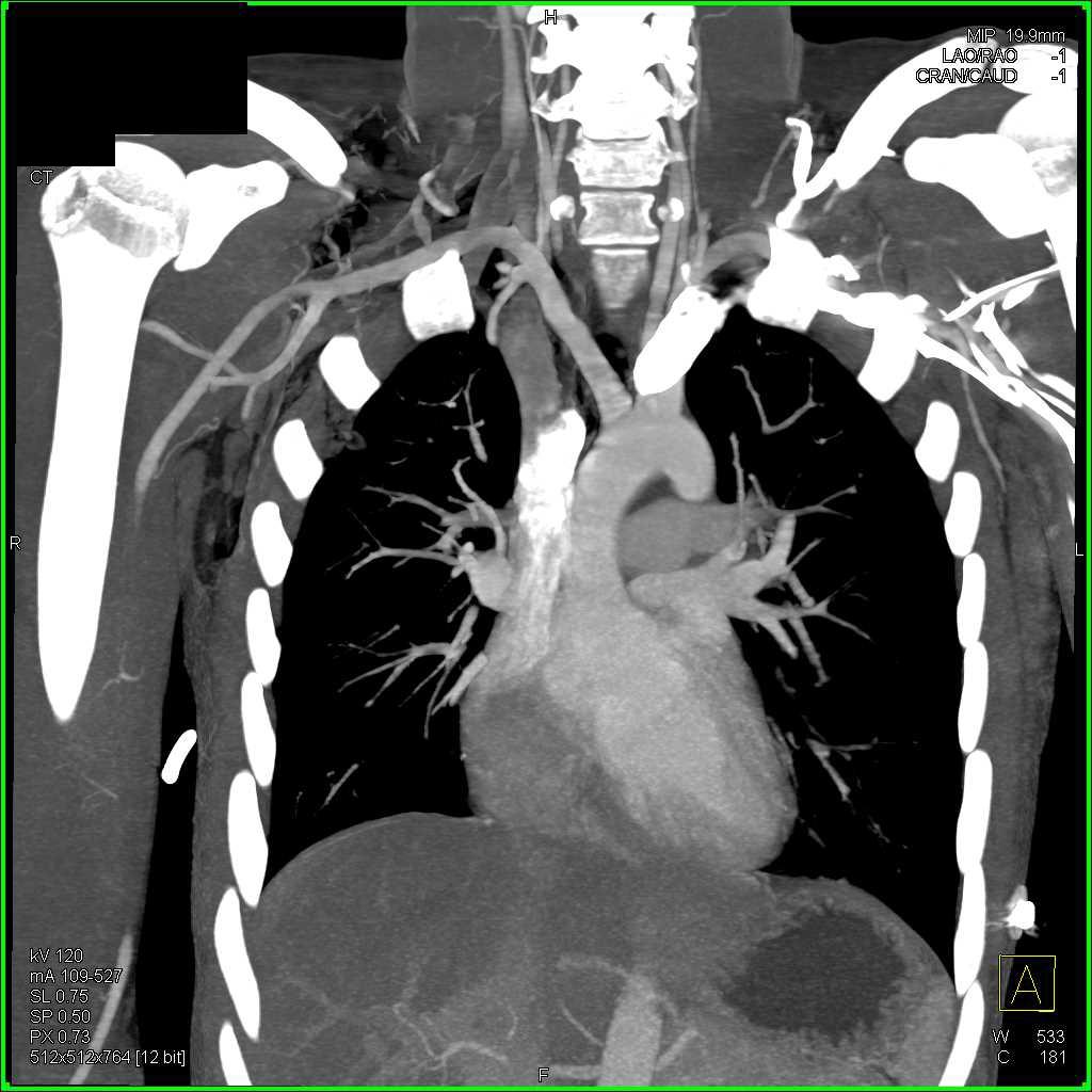 Pneumomediastinum s/p Stab Wound - CTisus CT Scanning