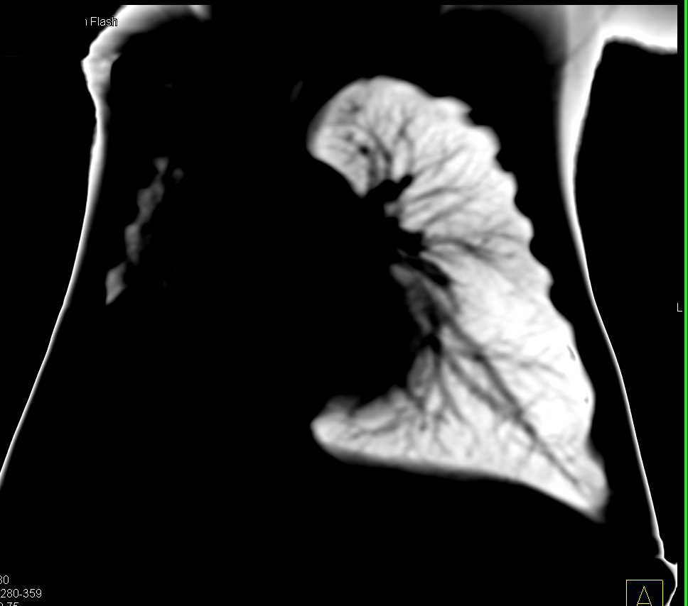 Occluded Right Upper Lobe Bronchus due to Stenosis - CTisus CT Scanning