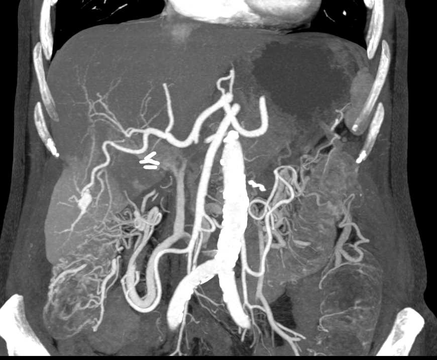 Angiodysplasia of the Right Colon - CTisus CT Scanning