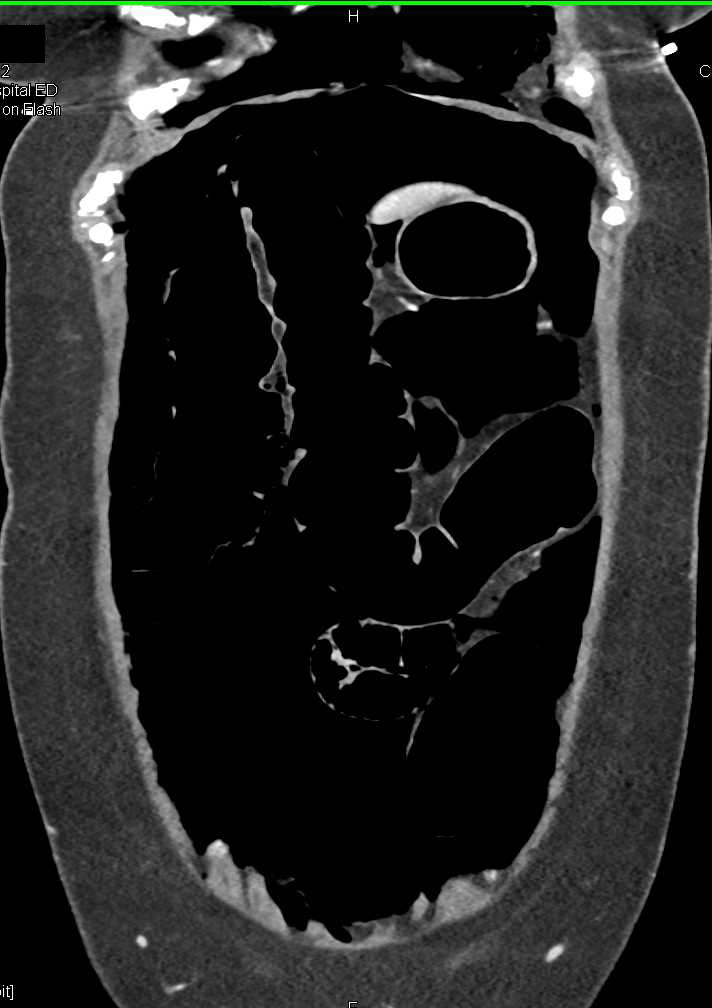 Pneumoperitoneum Due to Perforated Colon - CTisus CT Scanning