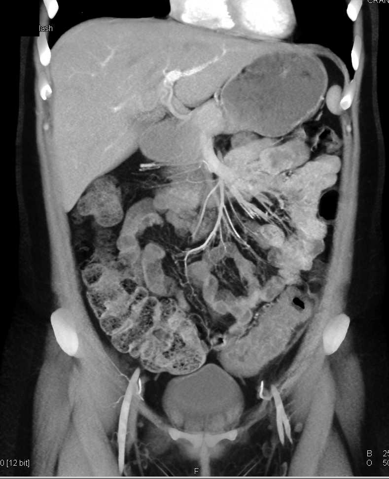Ischemic Colitis Descending Colon - CTisus CT Scan