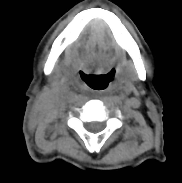 Adenopathy in Left Neck in Head and Neck Tumor Recurrence