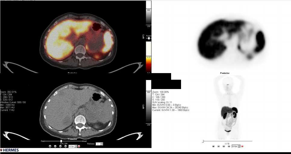 Metastatic Melanoma Involves the Liver and Spleen