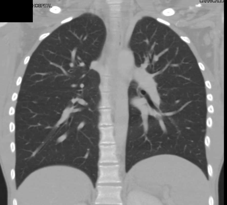 Esophageal Carcinoma - CTisus CT Scan