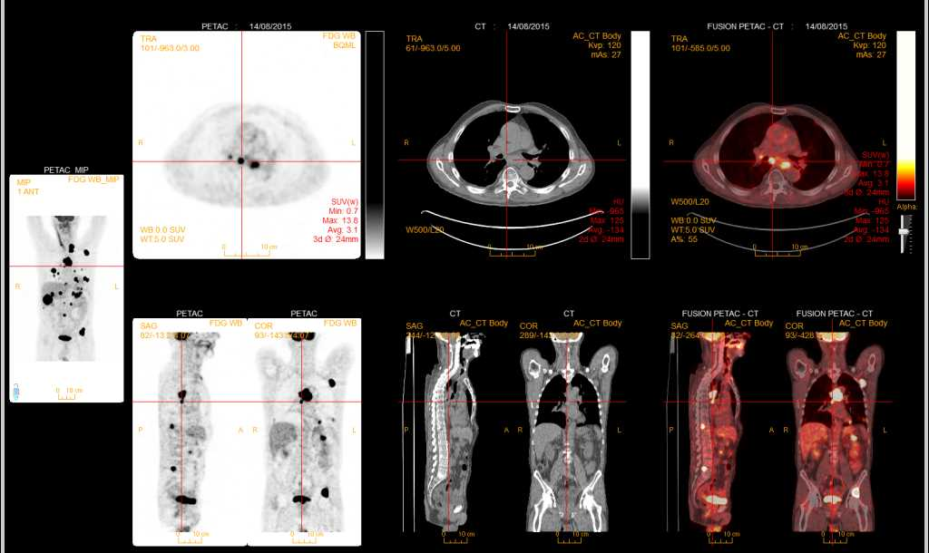 Esophageal Cancer with Widespread Metastases - CTisus CT Scanning