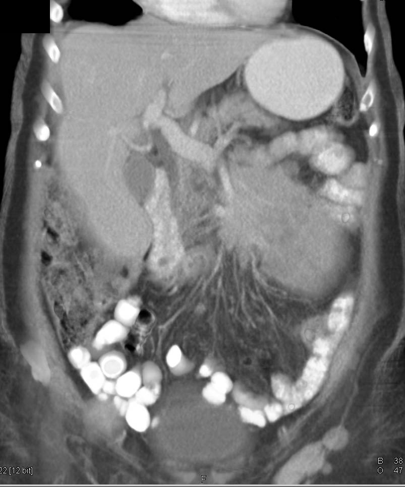 Lymphoma with Extensive Para-aortic Adenopathy and Mesenteric Mass