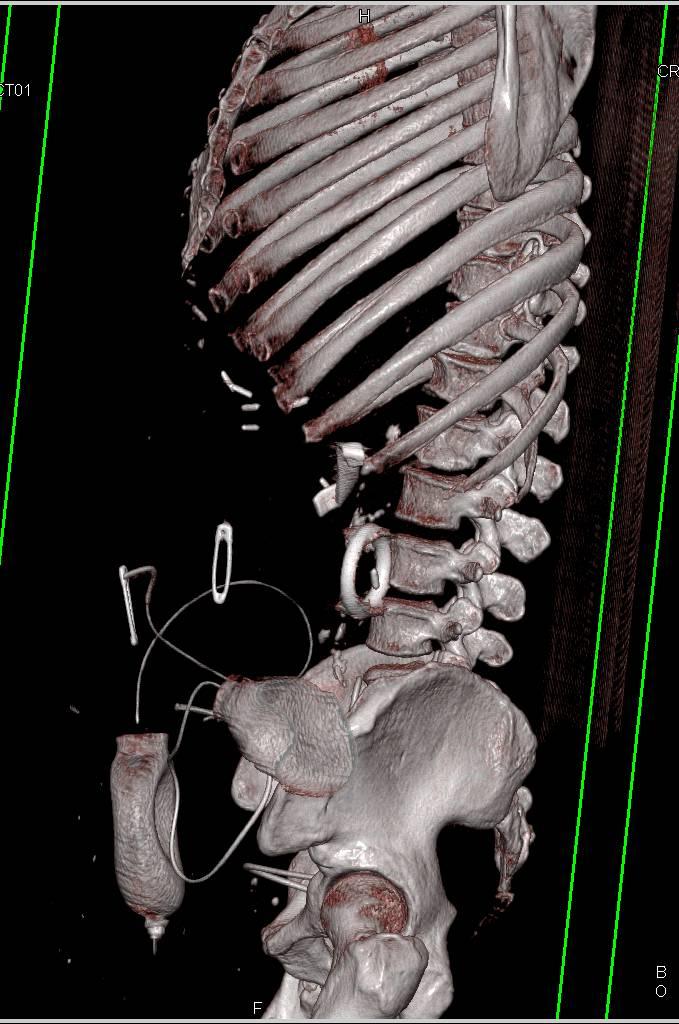 Retained Sponge in Left Upper Quadrant - Gastrointestinal Case ...