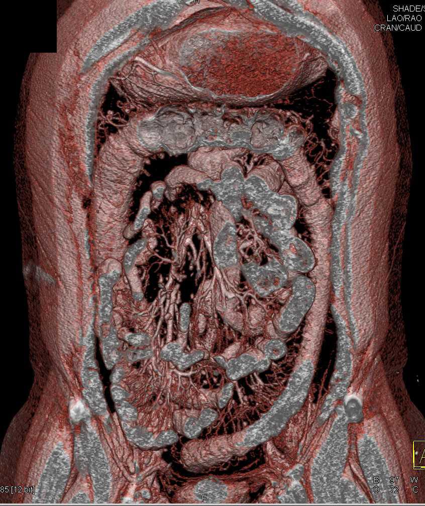 Crohns Disease Colon And Terminal Ileum Gastrointestinal Case