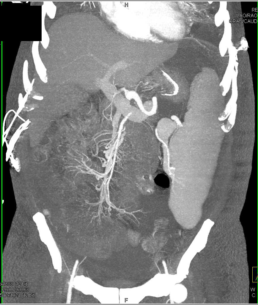 Ascites with Carcinomatosis