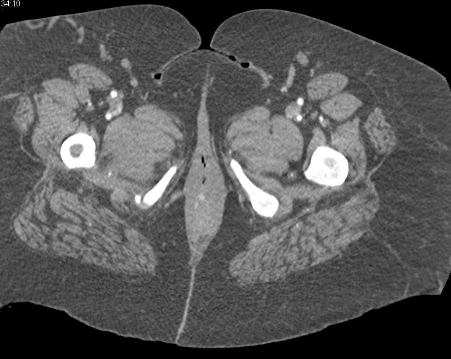 Perianal Disease - CTisus CT Scanning
