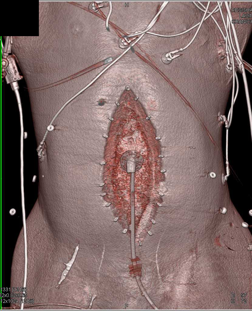 Abdominal Surgery with Sponge Still Present in Left Side of the Abdomen - CTisus CT Scanning