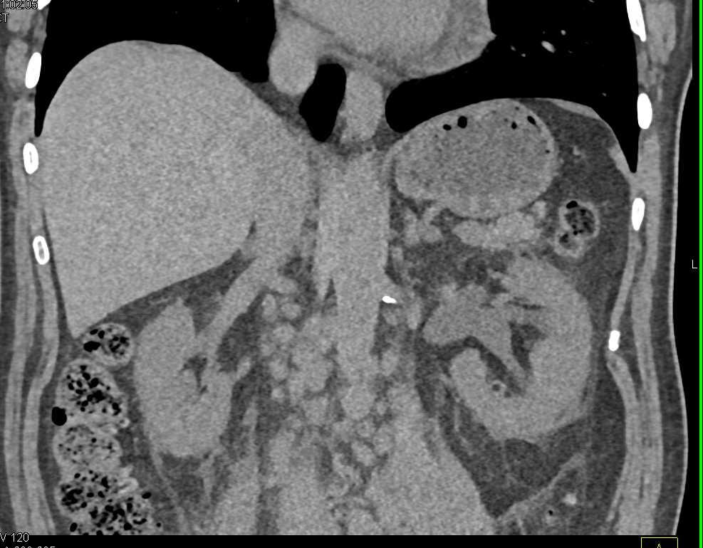Lymphoma with Adenopathy - CTisus CT Scanning