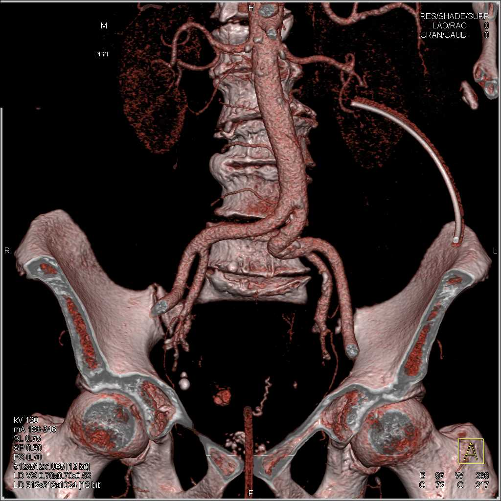 Active Bleed in the Rectum - CTisus CT Scan
