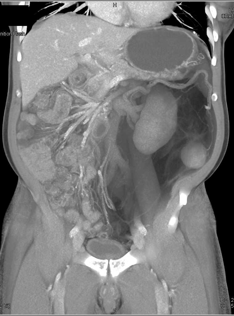Retroperitoneal Liposarcoma - CTisus CT Scanning