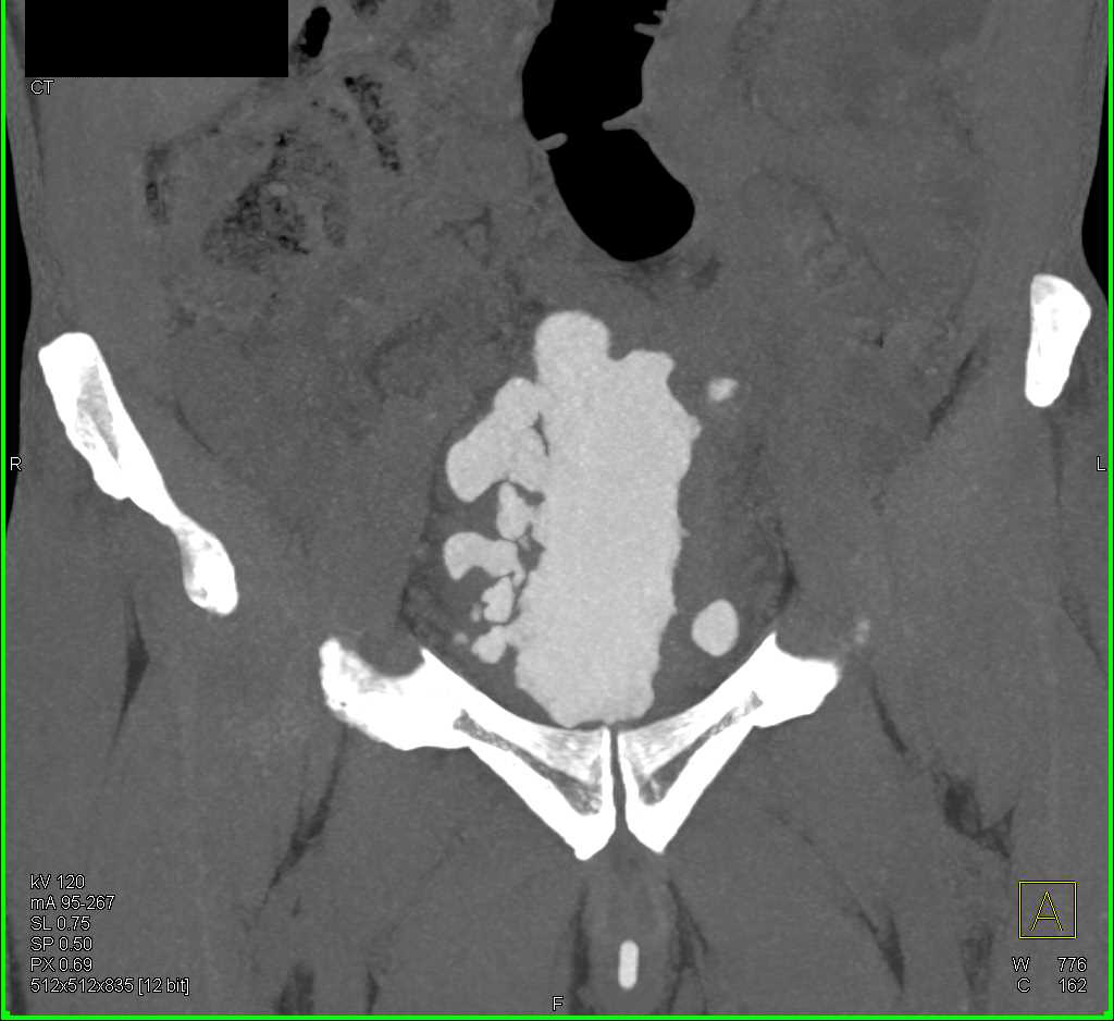 CT Cystogram with Thickened Bladder Wall and Multiple Diverticula - CTisus CT Scanning