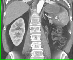 Normal Adrenal Glands - CTisus CT Scan