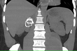 Calcified Renal Artery Aneurysm Simulates An Adrenal Mass. Also Bleed in Left Psoas Muscle - CTisus CT Scan