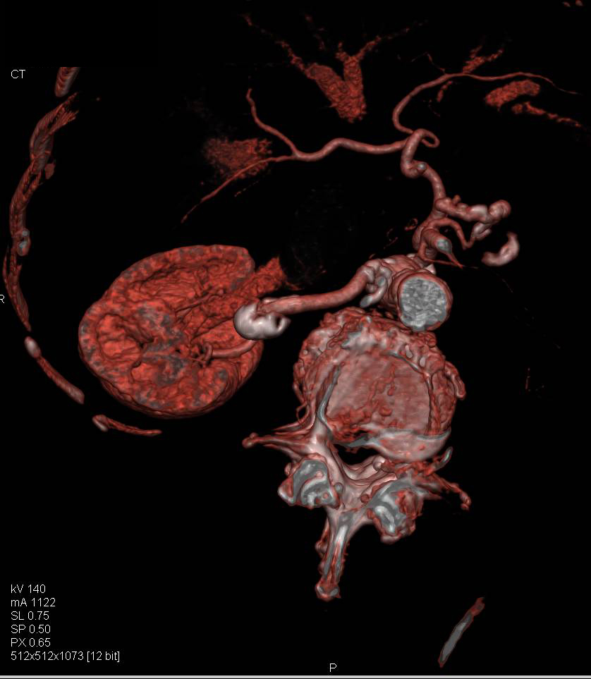 Right Renal Artery Aneurysm