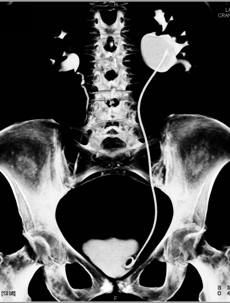 CT Urogram with a UPJ in the Left Kidney