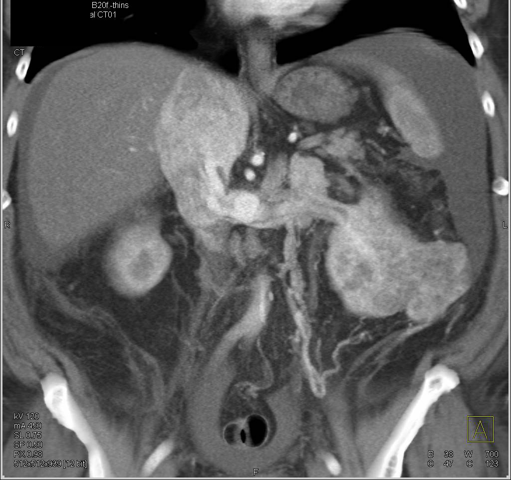 Renal Cell Carcinoma with Extension into Renal Vein, IVC and into the Right Atrium