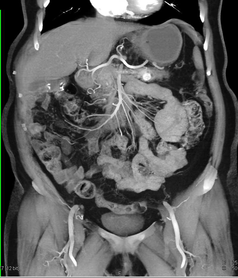 Metastatic Renal Cell Carcinoma to the Contralateral Kidney and the Pancreas