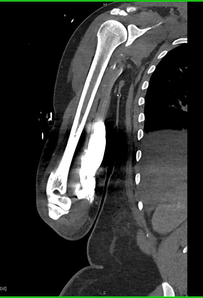 Contrast Extravasation in the Forearm - CTisus CT Scanning