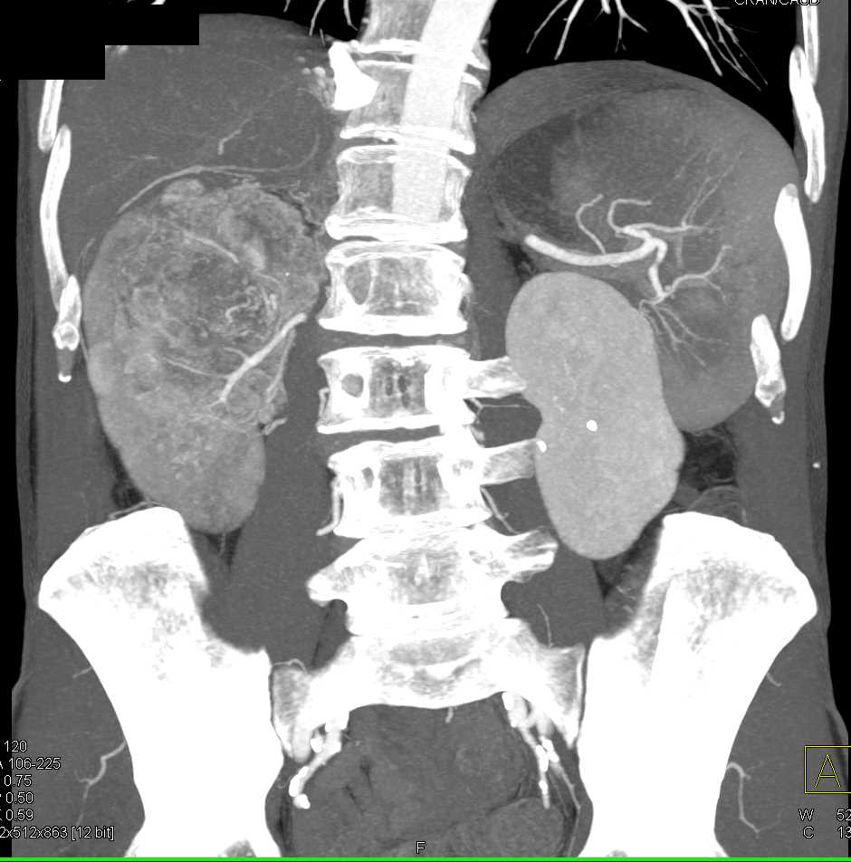 Clear Cell Renal Cell Carcinoma Invades the Renal Vein and IVC - CTisus CT Scanning