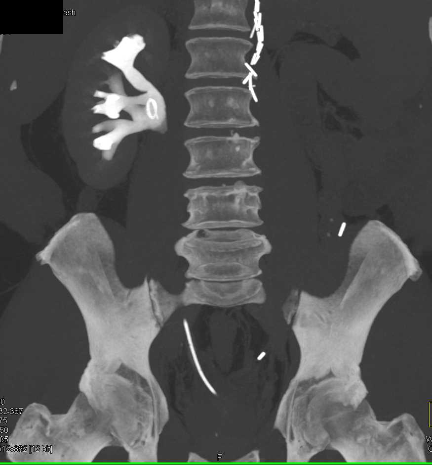 Stone in Right Renal Pelvis - CTisus CT Scanning