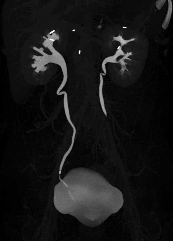 TCC Lower Pole Left Kidney with Distortion of the Calyceas - CTisus CT Scan