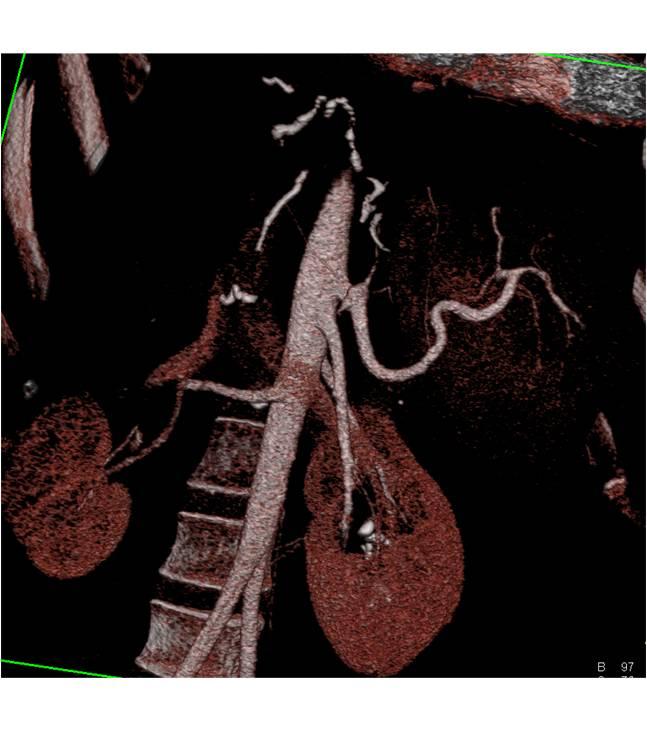 Gallbladder Cancer Liver Transplant Specialist