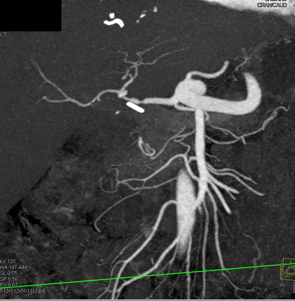 Hepatic Artery Stenosis in a Liver Transplant Patient - CTisus CT Scanning