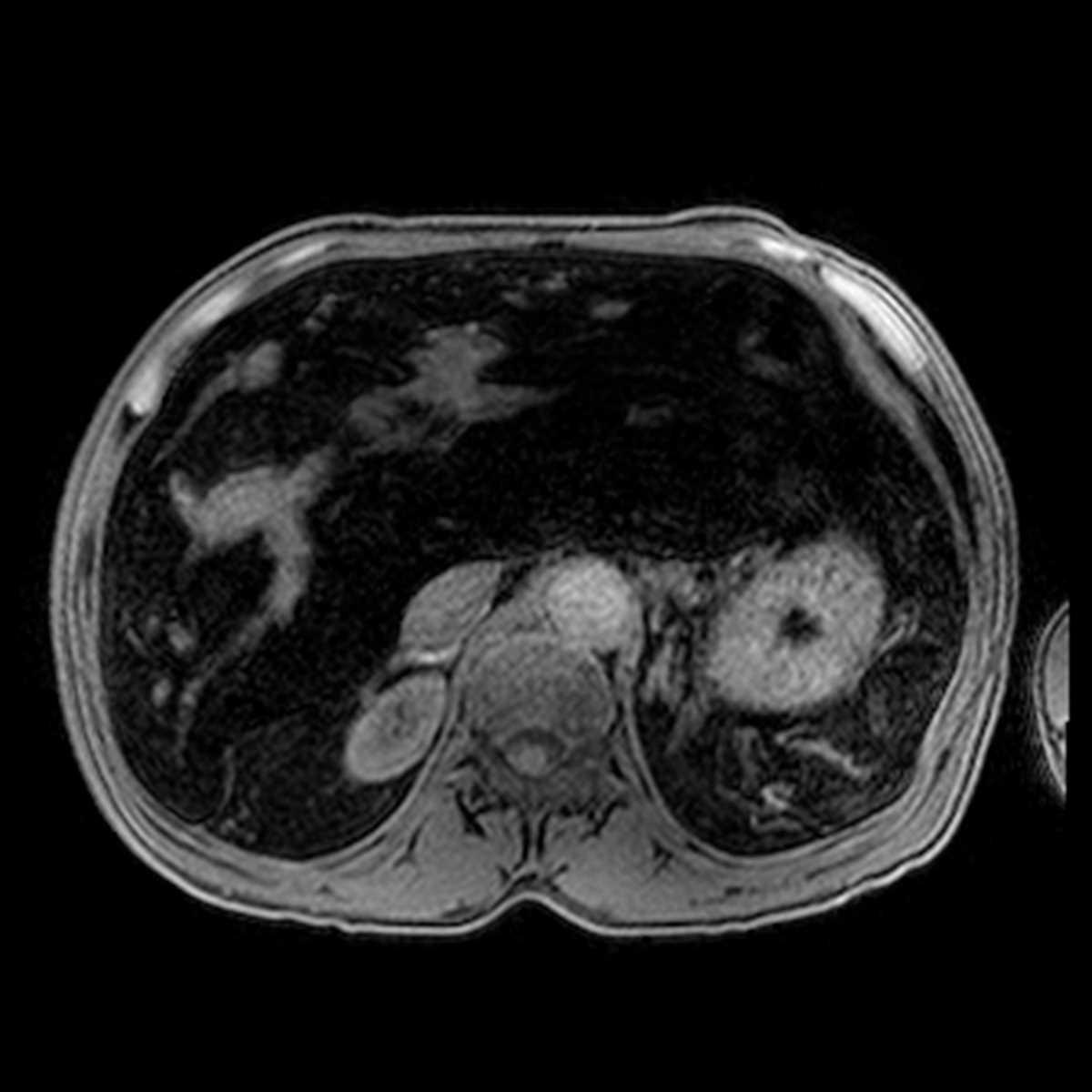 Sickle cell patient treatment essay