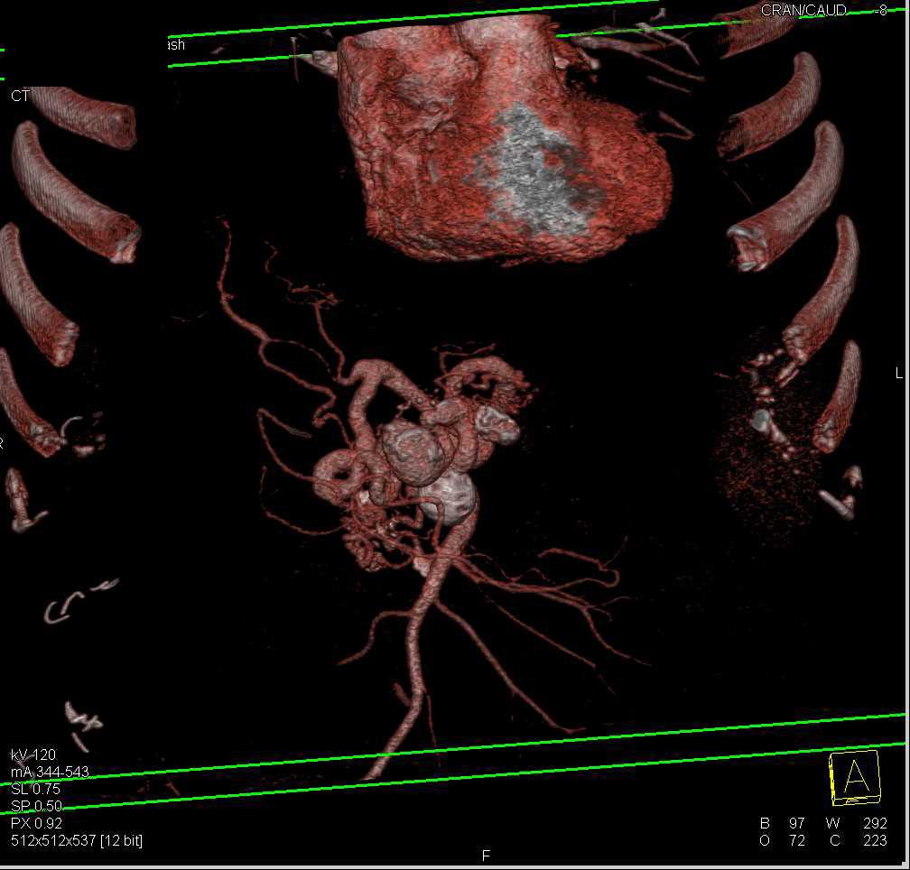 WebmedCentral.com :: Enlarging Superior Mesenteric Artery Aneurysm ...
