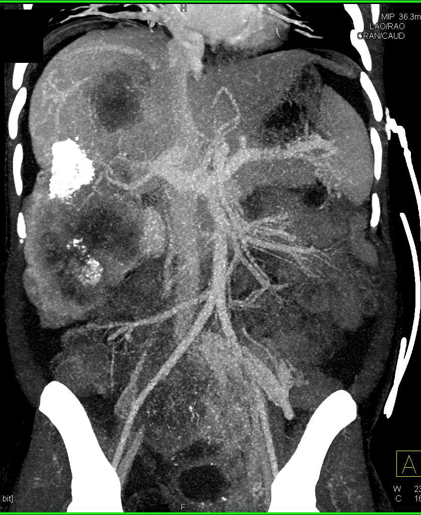 Multifocal Hepatoma with Ascites