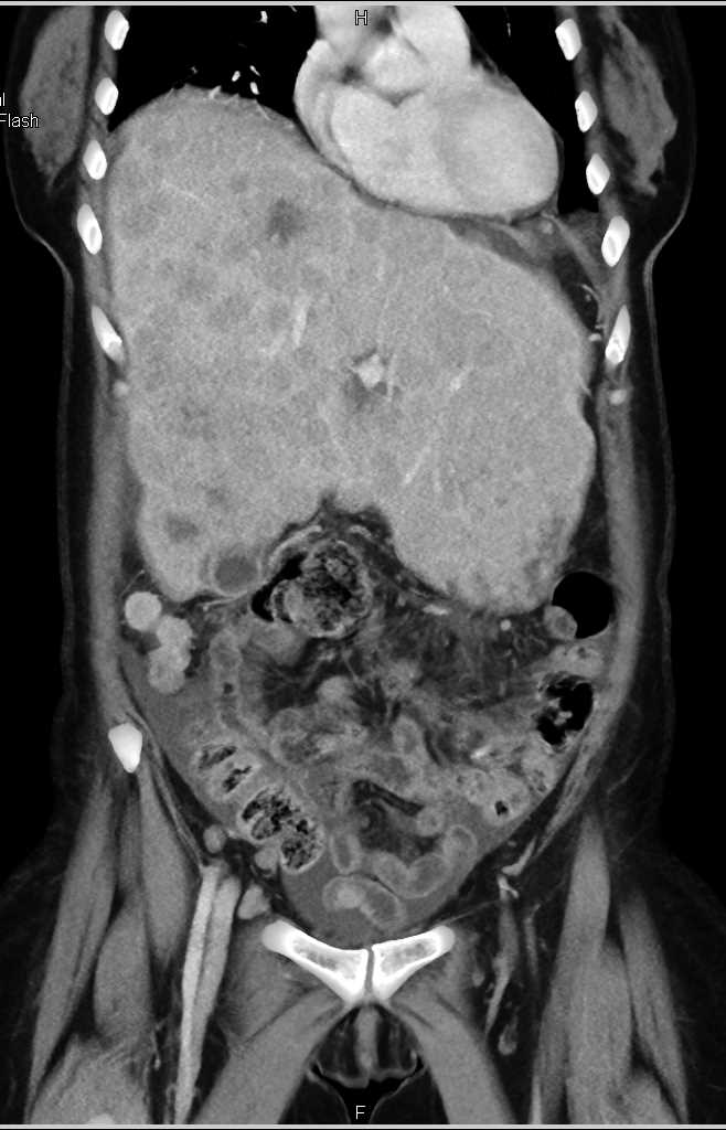 Metastatic Colon Cancer to Liver with Carcinomatosis - CTisus CT Scanning