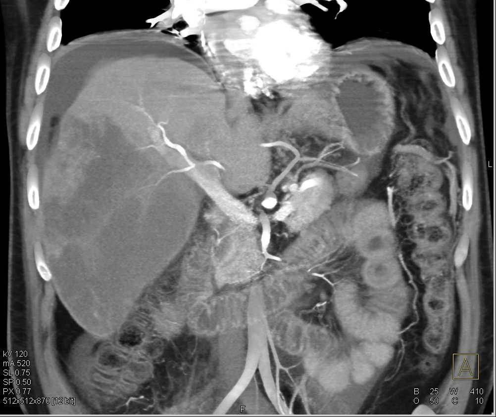 Multifocal Cholangiocarcinoma with Ascites - CTisus CT Scanning