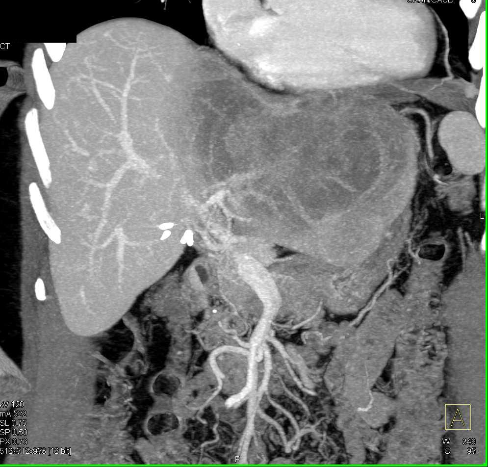 Cholangiocarcinoma with Adenopathy - CTisus CT Scanning