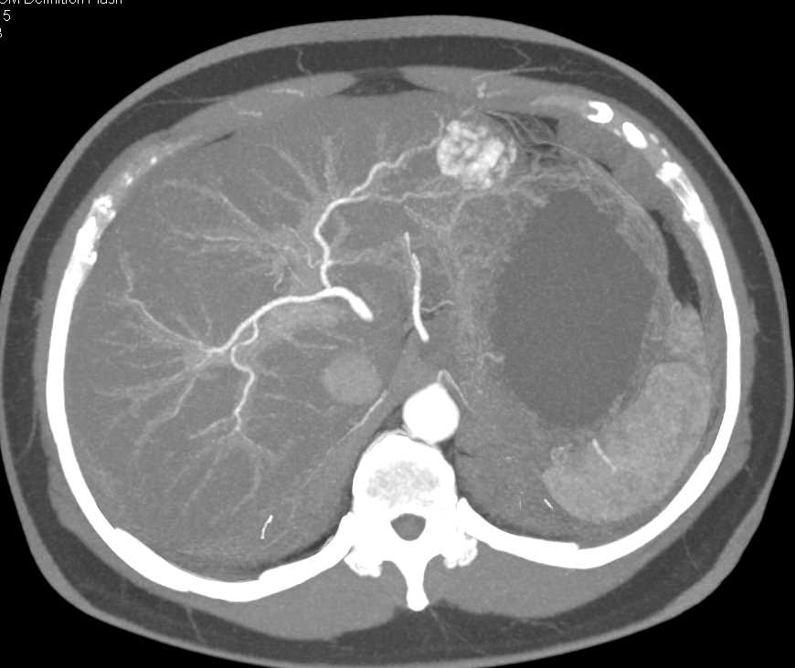 Hepatic Hemangioma - CTisus CT Scanning